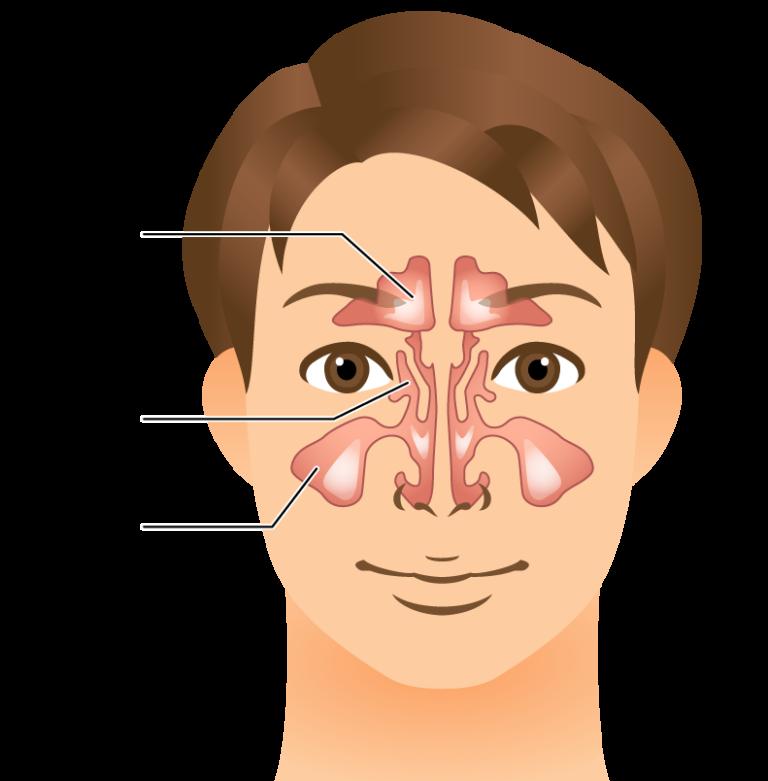 副鼻腔手術